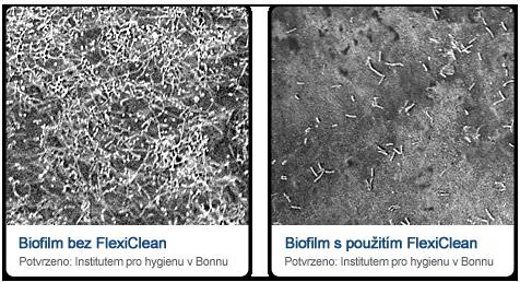 Biofilm ve sprchové hadici